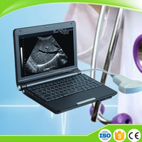 Low price economical Portable Hospital Mini ultrasound device