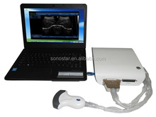 Bottom price promotional desktop ultrasound scanner portable