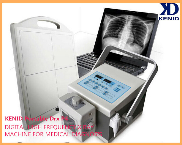 China portable x ray machine x ray machine Medical mobile veterinary digital thermometer DR X-ray equipment forsale