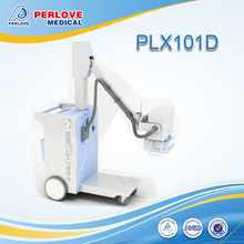 Mobile X-ray unit PLX101D with computed radiography system