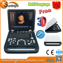 ultrasound scanner 3d portable