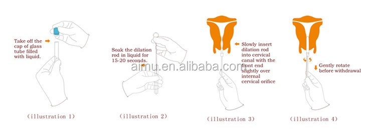 cervical dilator- instruction for use.jpg