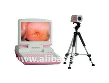 SW-3303 digital colposcope image-forming system (portable)