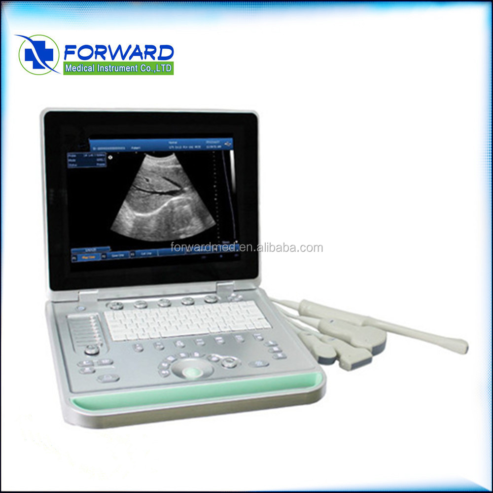 Portable LCD display Ultrasound Scanner CONVEX PROBE 3D software optional linear