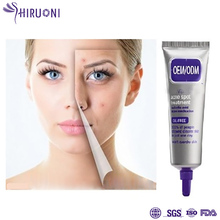 OEM Face anti acne pimple whitening cream for Sensitive Skin