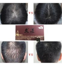 New fast restoring cheap hair growth oil
