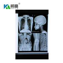 Wholesale Blue Base Dry Medical X-ray Film for Inkjet Printers
