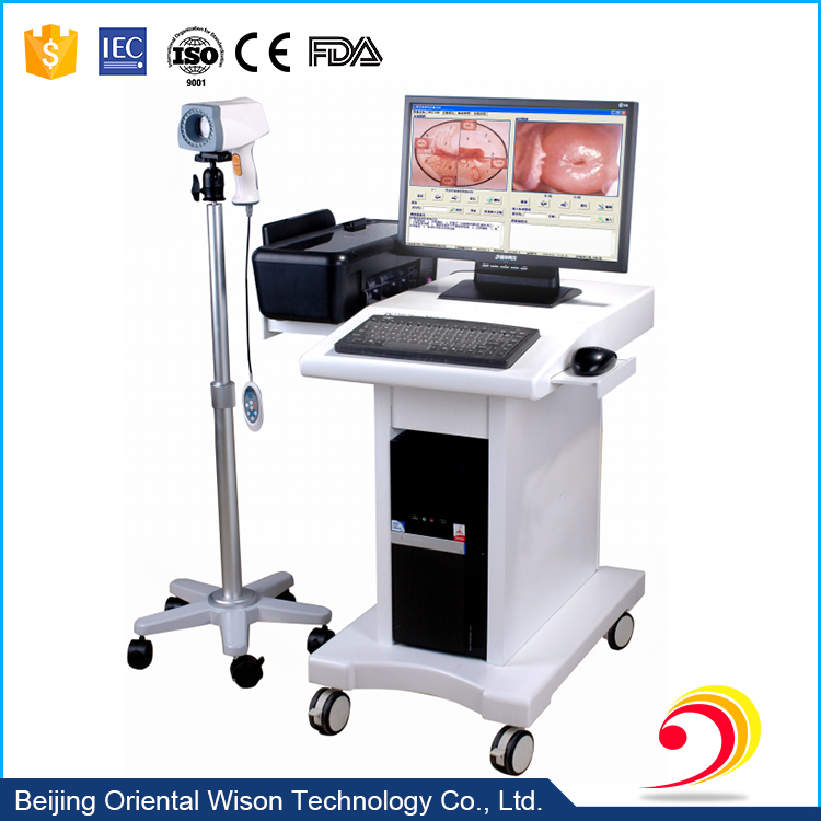 Colposcope optical digital imaging system colposcope for gynecology
