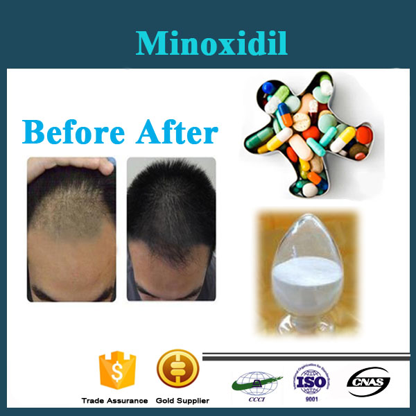 High Purity Promoting Hair Growth Minoxidil powder raw material
