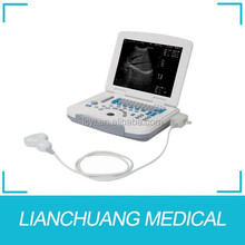12 inch LCD monitor digital portable laptop ultrasound scanner
