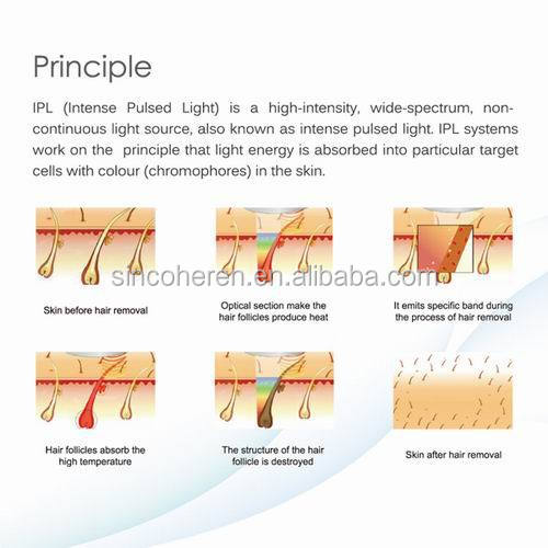 skin tighting SHR IPL beauty equipment IPL hair removal