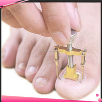 Professional Ingrown Toenail Correction Tool Medical