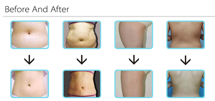 Cavitation Slimming Beauty Machines for Sale (VACA Shape)