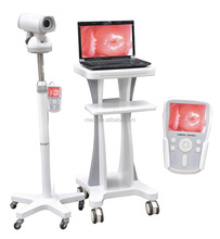 Cheapest Digital video colposcope in low price for sale