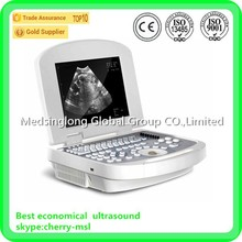 High Performance ultrasound with commpetive price -- MSLPU28