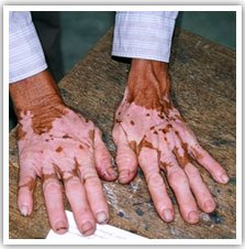 Cure Vitiligo Oil