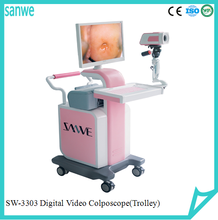 New Products Medical Equipment Video Digital Optic Colposcope With Treatment System,high definition optic digital colposcope
