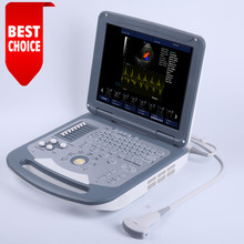 CE/ISO Professional Hospital Equipment/ Color Doppler Ultrasound Scanner/ Machine pregnancy