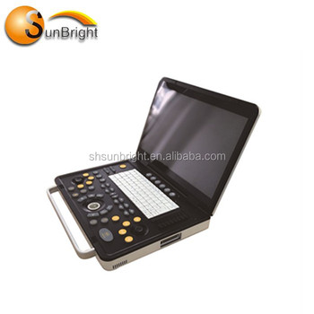 Good quality Gynecology obstetric portable ultrasound device