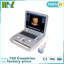 (MSLCU18)Best 4D Color Doppler Medical Ultrasound Scan Machine