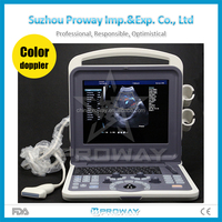 CE Approved Portable 3D 4D Color Doppler Ultrasound Price(PRUS-WK60)