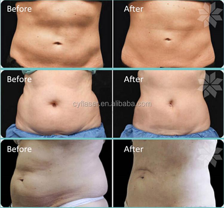 weight loss macine fat freezing machine.-.jpg
