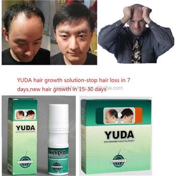 Anti balding