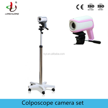 Vaginal scope digital video colposcope camera