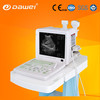 portable ultrasound machine & portable usg device