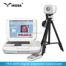 Best Price Portable Digital Colposcope with Spainish Colposcope software
