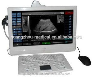 CE approved Fully Digital Laptop Ultrasound Machine for hot sale