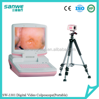 Protable colposcope Gynecology equipments