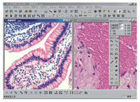 Microscopic ScopeImage Analysis Software digital microscope measure software