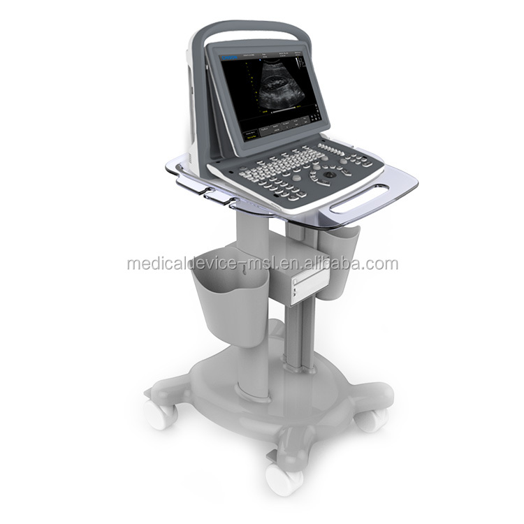 CE ISO Chison portable B/W ultrasound CHISON ECO2 black white ultrasound machine