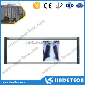 high quality Disjunctive Medical LED negatoscope,x ray view box,radiography film viewer and led film viewer