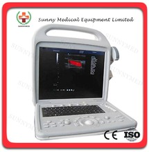 SY-A027 cheap 3D Color Doppler Portable B Ultrasound Scanner Portable Ultrasound Scanner