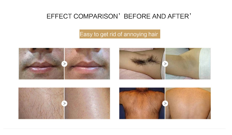 Professional permanent portable lightsheer laser hair removal machine for sale laser diode hair removal  lady shaver