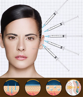Cosmetic Injectables Cross-linked Dermal Filler Injection for Women Beauty