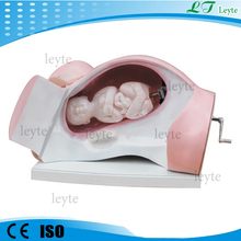 XC-402 medical teaching child birth model/ fetus model /Model of Course of Delivery