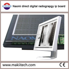 Naomi CCD DR Digital computed Radiography System