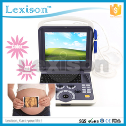 Proway available! China portable ultrasound machine price & China b ultrasound scanner PRUS-WK60