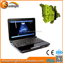 Laptop USG portable ultrasound machine/scan for sale China price