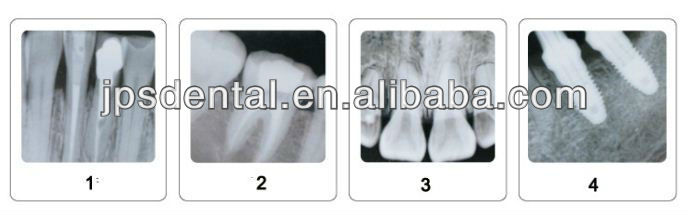Digital portable dental X-Ray AP-60P