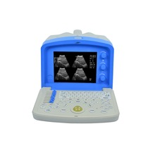 Cheapest Price of Portable Ultrasound Machine/Scanner ISO,CE Approved