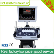 Sonostar portable cardiac color doppler 4D ultrasound machine with CE low price C200
