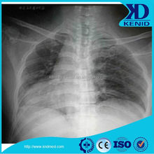 Imaging medical xray film,Kenid/Fuji/Agfa/Konica/Kodak medical dry film10*12in / 25*30cm