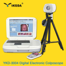 Digital Video Colposcope for Vaginal Examination IKEDA