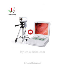 Colposcopy Systems High Quality Portable Digital Image Software Colposcope Prices