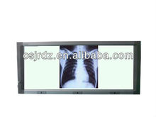 Led medical x-ray film viewer