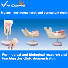 Molars , deciduous teeth and permanent tooth